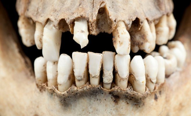 ΟΙ αρχαίοι μας πρόγονοι (μεσολιθικής εποχής) είχαν καλύτερα δόντια από μας!!